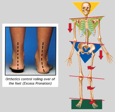 footlevelers pic showing the concept of Orthotics