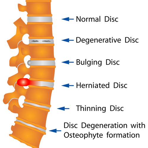 shutterstock 152531303 showing the concept of Spinal Decompression